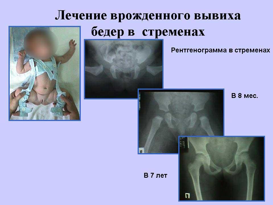 генетика врождёный вывих тазобедреного сустава