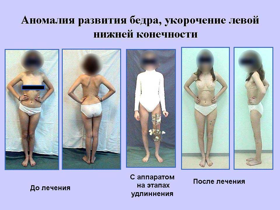 Делают ли операцию при варикоз