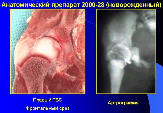 лечение ревматизма коленных суставов медикаменты