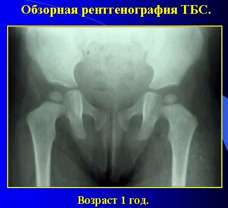Что такое ядра окостенения тазобедренных суставов дисплозия тазобедренных суставов признаки