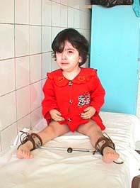 Дисплазия тазобедренных суставов у детей шина вилевского болят суставы в локтях и коленях